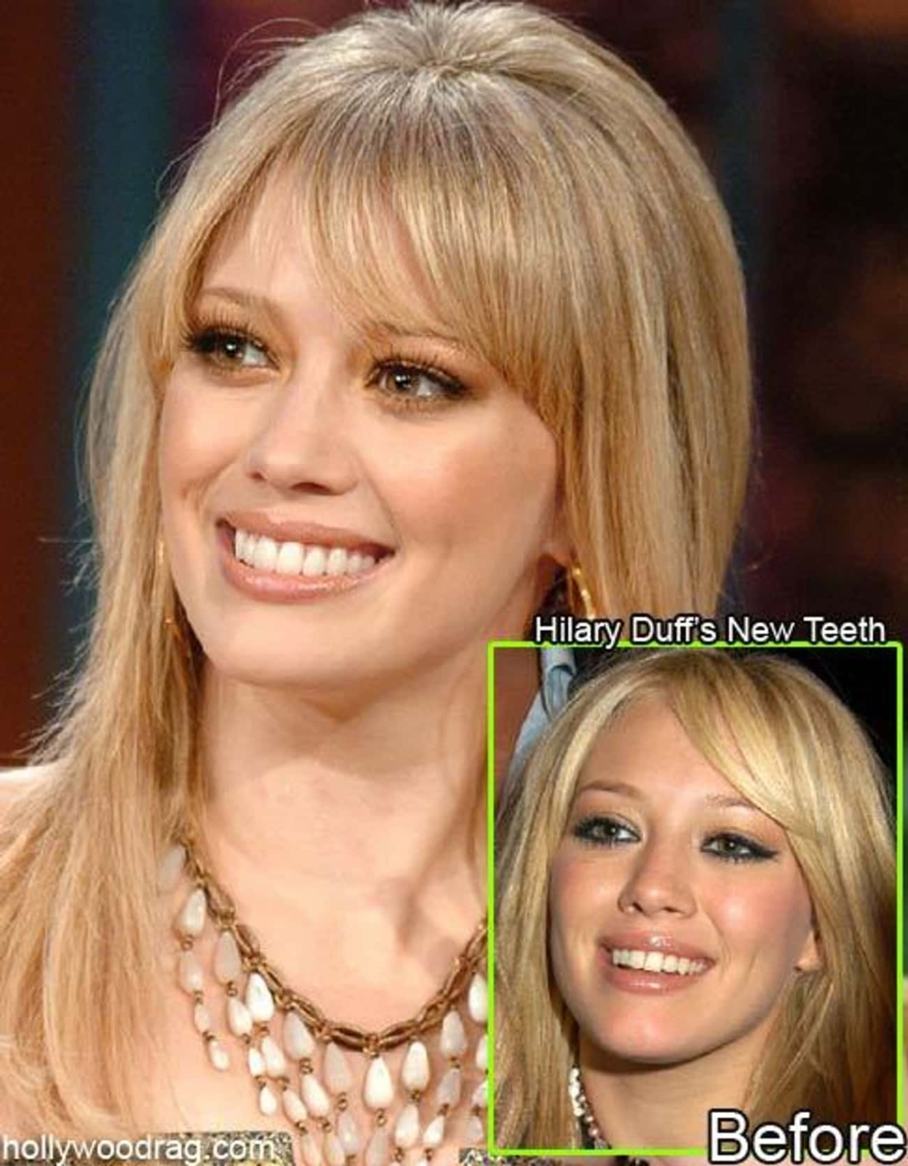 Hilary Duff is listed (or ranked) 2 on the list Celebrities With Fake Teeth