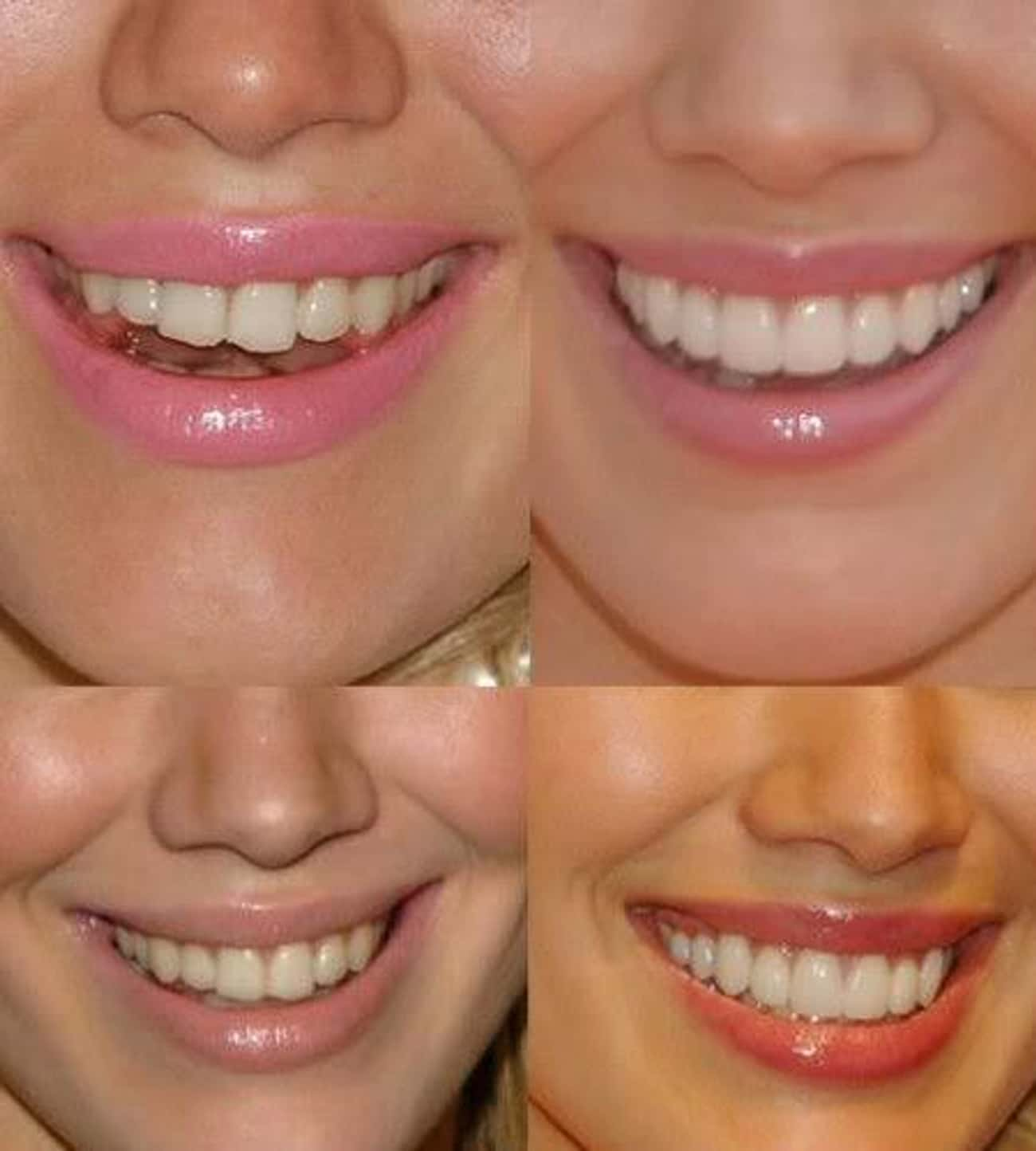 Hilary Duff is listed (or ranked) 3 on the list 15 Celebrities With Chipped Teeth