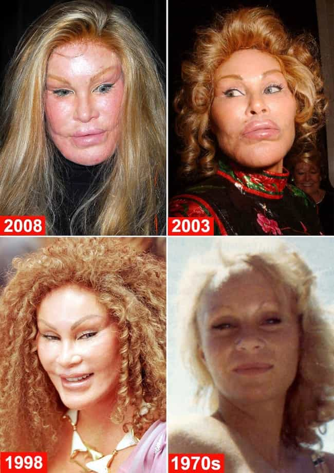 Celebrities Who Look Worse After Plastic Surgery