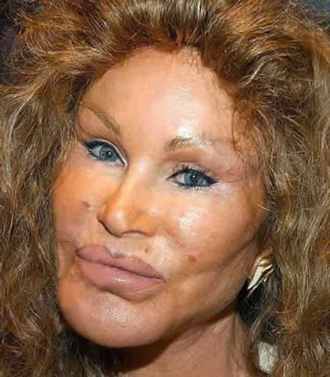 Jocelyn Wildenstein is listed (or ranked) 2 on the list Pure UGLIEST Celebrities?!