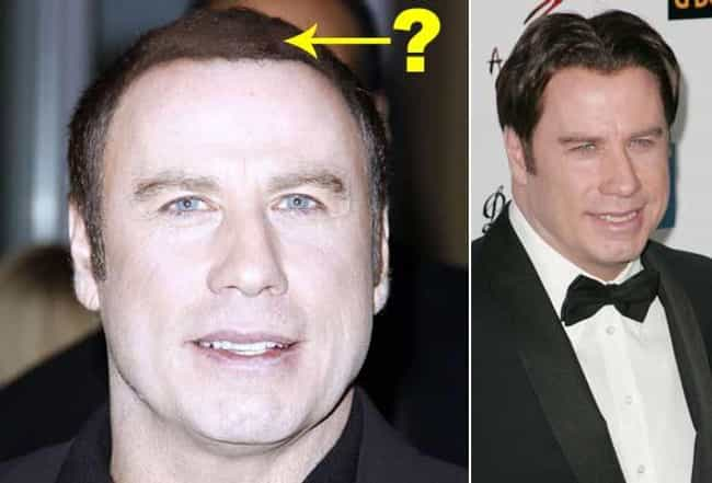 John Travolta is listed (or ranked) 2 on the list 20 Celebrities Who Have Had Hair Transplants