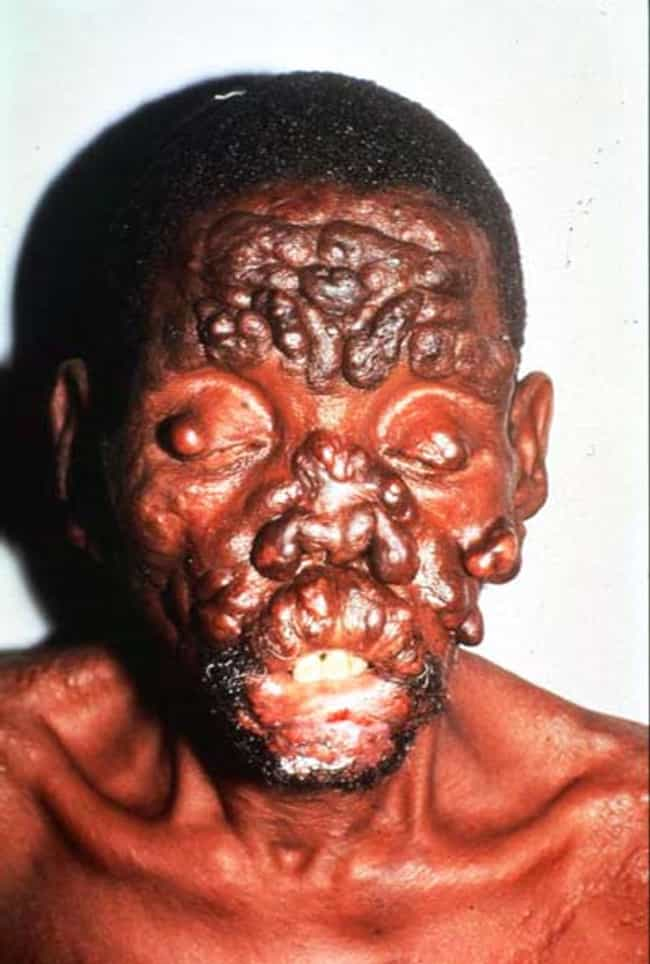 The 10 Grossest Body Growths (Warning: Graphic Images)
