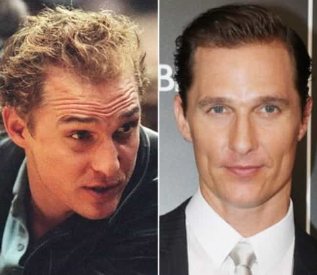 Matthew McConaughey is listed (or ranked) 1 on the list 20 Celebrities Who Have Had Hair Transplants