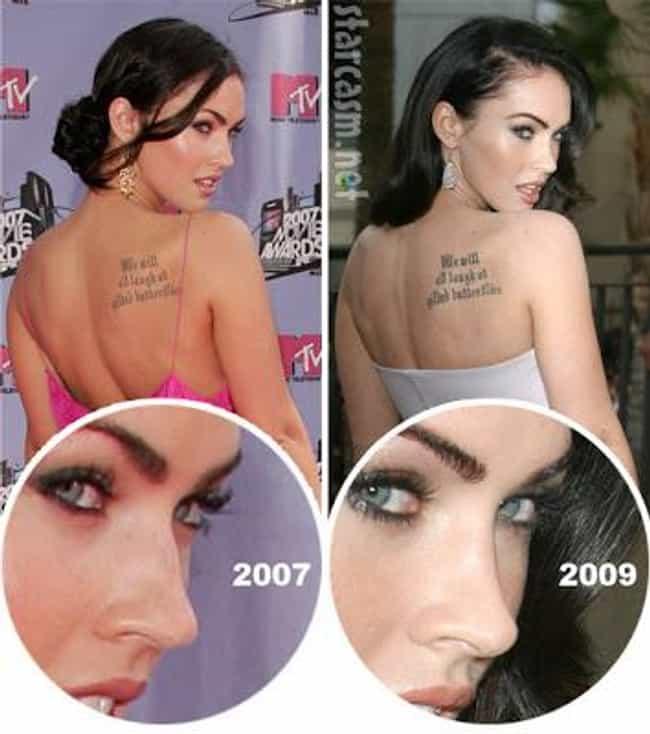 celebrity nose jobs
