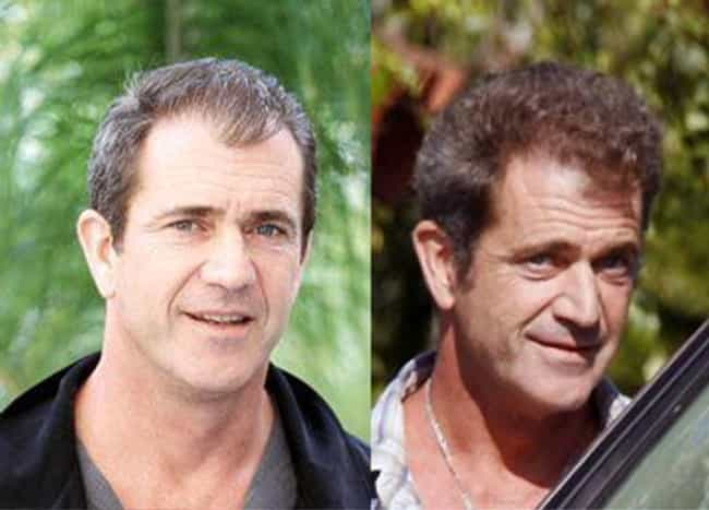 Mel Gibson is listed (or ranked) 3 on the list 20 Celebrities Who Have Had Hair Transplants