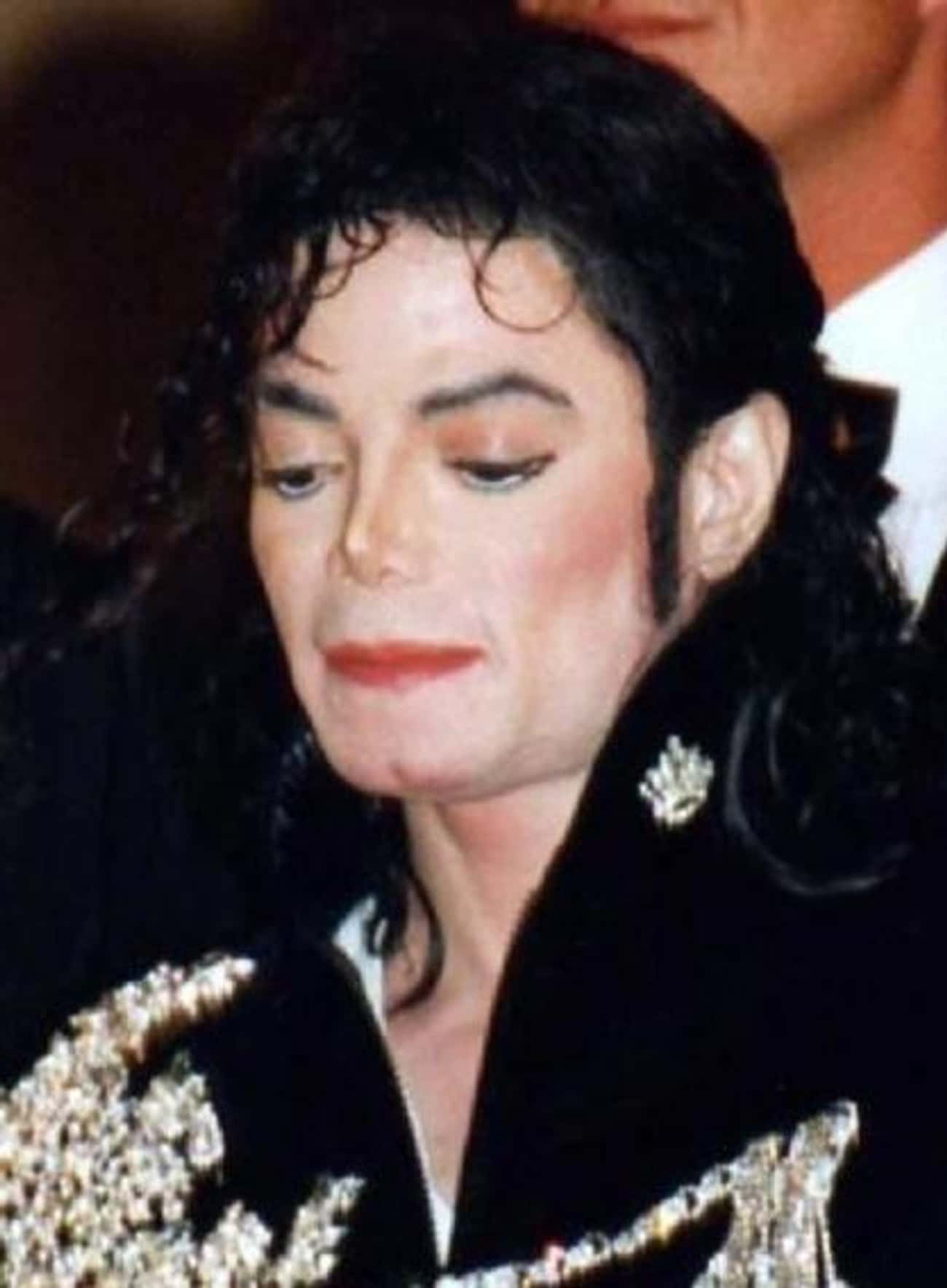 Michael Jackson is listed (or ranked) 1 on the list Celebrities You Didn't Know Have Vitiligo
