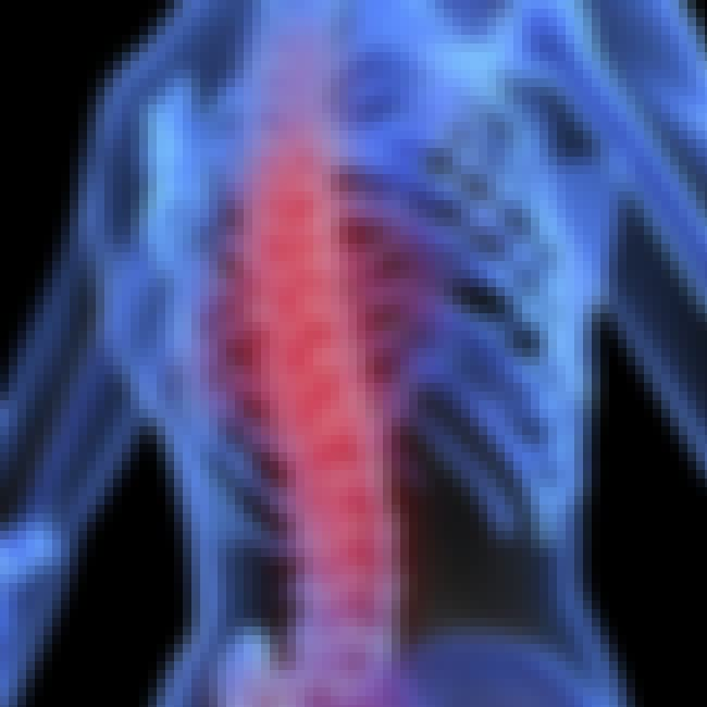Osteoporosis is listed (or ranked) 5 on the list List of Endocrine Disorders
