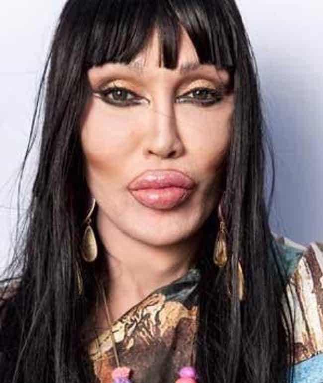 Bilderesultat for worst botox