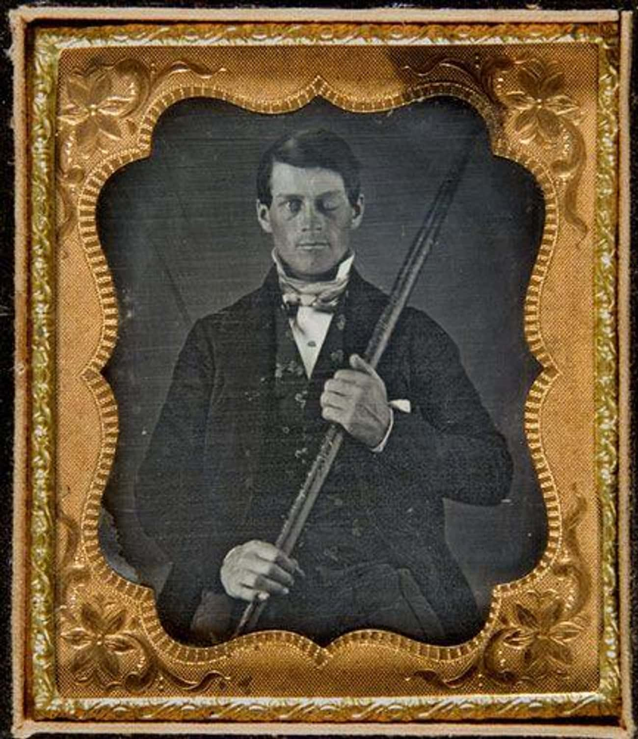 Phineas Gage Survived A Tampin is listed (or ranked) 4 on the list 15 Bizarre Psychological Cases From History That Left Scientists Speechless