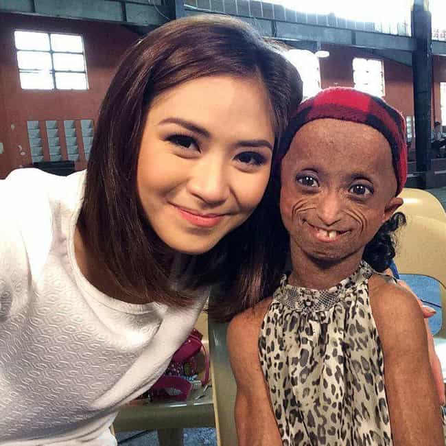 Progeria is listed (or ranked) 5 on the list The Rarest And Most Gruesome Genetic Diseases Known To Science